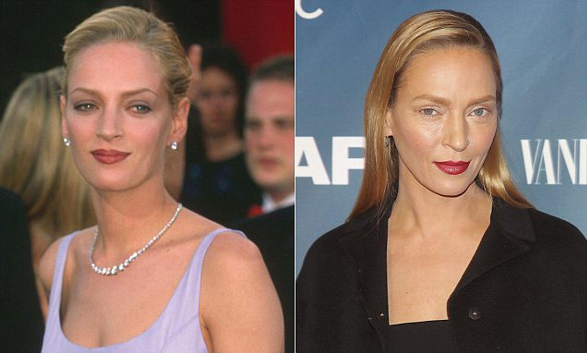 The Biggest Celebrity Plastic Surgery Fails Of All Time